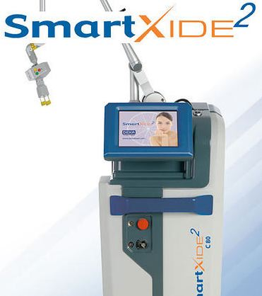 smartxide2